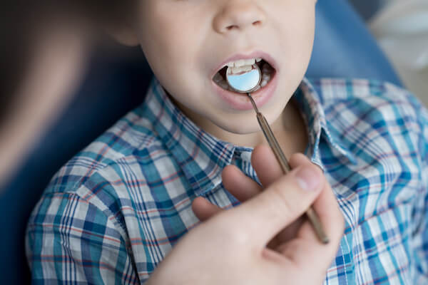 Close up  portrait of cute little boy sitting in dental chair with mouth open while dentist examining his teeth using mirror in modern clinic