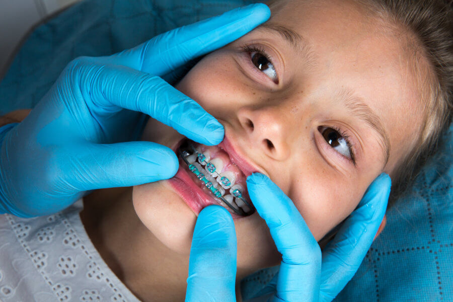 Dentist, Orthodontist examining a little girl patient's teeth with green braces. Close up of girl head and dentist, orthodontist hands with blue gloves