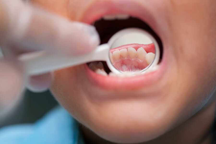 pediatric dentist melbourne, childrens dentist melbourne,  brevard pediatric dental,  pediatric dentist melbourne fl,  sunshine pediatrics melbourne fl  A close-up of a young boy getting a dental exam by dentist and using dental mirror to see baby teeth and gums.